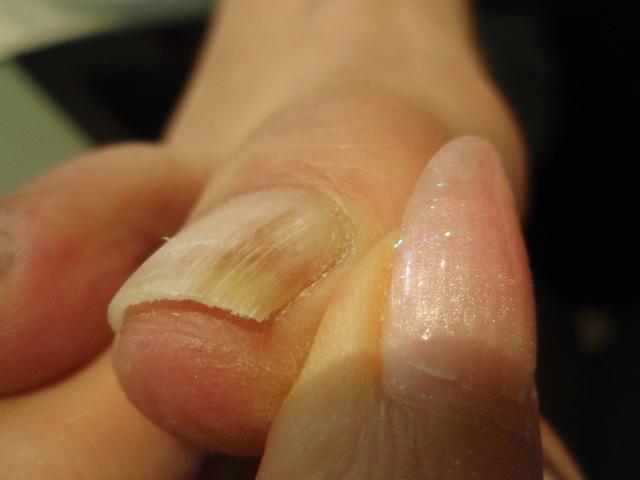 2年前の親指.JPG
